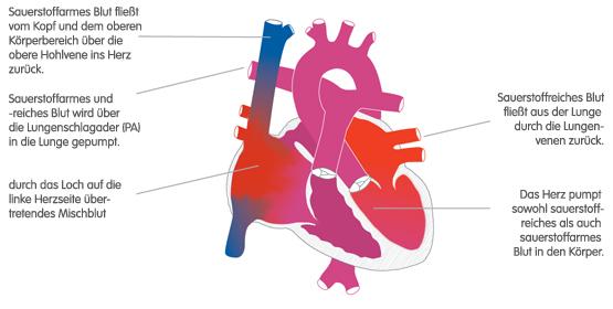Corience: Lungenvenenfehlmündung